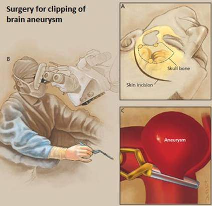 Microsurgery clipping for anterior communicating artery aneurysm